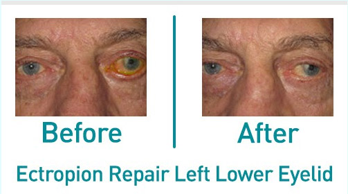 Plastic Surgery Danbury CT | Before & After Gallery ...